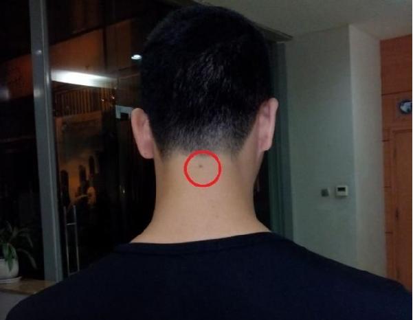 Đàn ông có vị trí nốt ruồi sau gáy nói lên điều gì?
