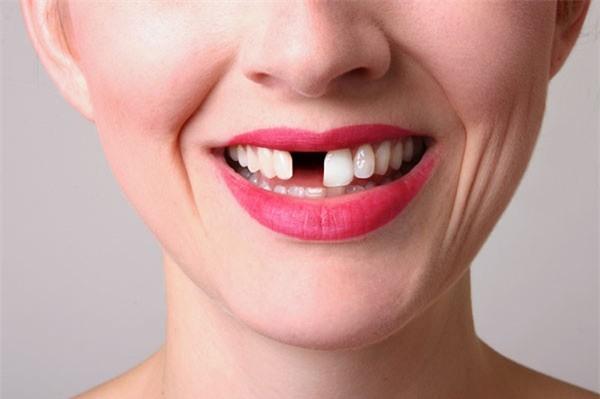 Ngủ mơ thấy rụng răng là điềm lành hay dữ?
